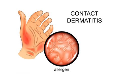 Contact Dermatitis When You Are Allergic to Your Wedding Ring